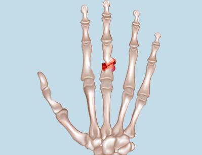 перелом среднего пальца руки фото