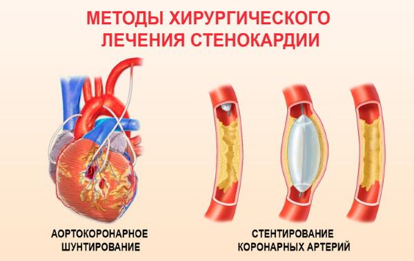 Хирургическое лечение стенокардии